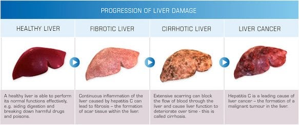 1_progression-of-liver-damage