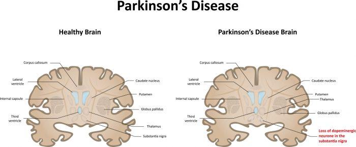 Could 'Advanced Probiotics' Soon Treat Parkinson's Disease?