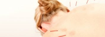 acupuncture for pain