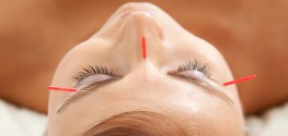 3 Interesting Ways Acupuncture can Help with Chronic Pain and PTSD