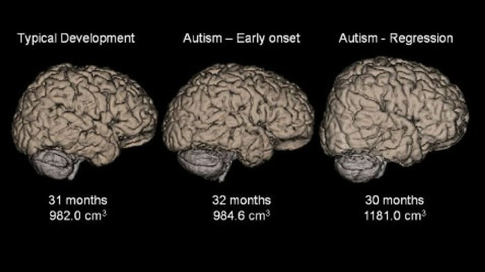 Brain Scans Catch Autism Months Before Symptoms Appear : Dr. Leonard Coldwell.com