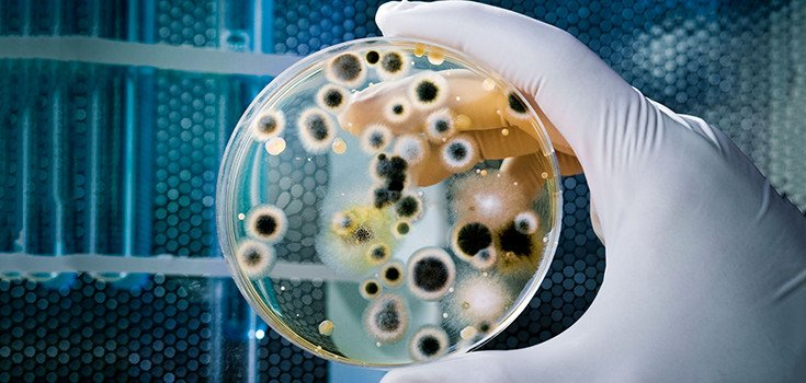 lab 5 coliform bacteria and surface