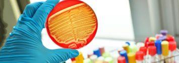 """Scientists Modify Antibiotics to """"Rip Apart"""" Superbugs in Minutes"""
