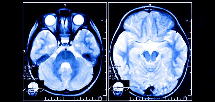 brain-scans-735-350