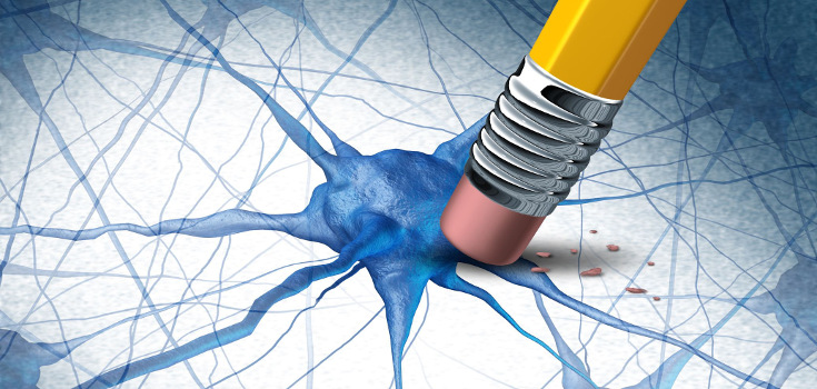 brain_cell_memory_alzhiemers_Dementia_735_350