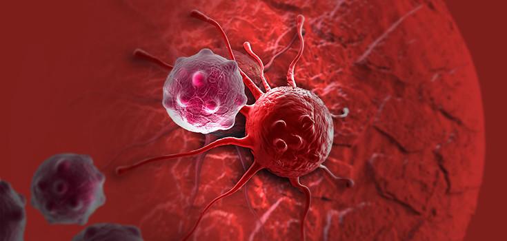 cancer-tumor-735-350