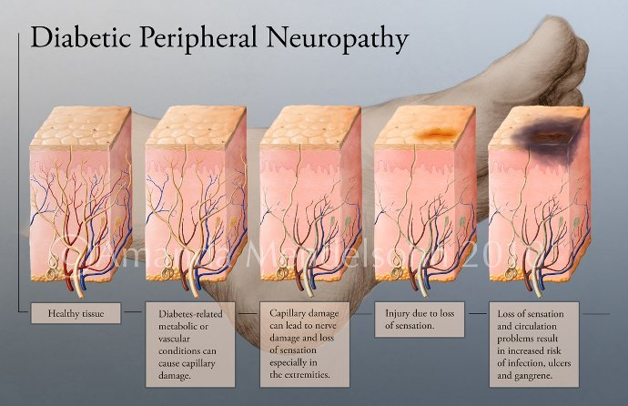 dIABETIC-nEUROPATHY_690