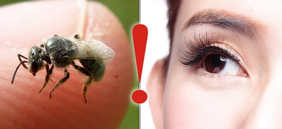 Doctors Find 4 Sweat Bees in Woman's Eyes, Living Off of Her Tears