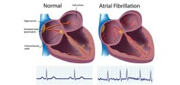 Know the Causes and Symptoms of Atrial Fibrillation