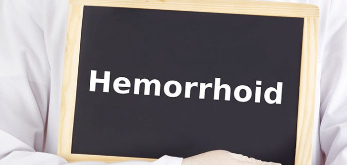 home remedies for hemorrhoid relief