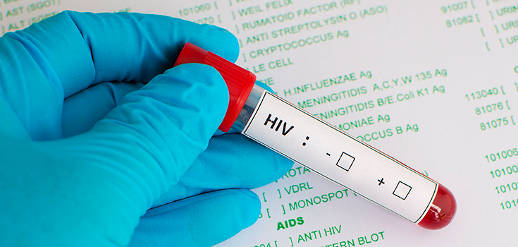 hiv-medical-test-no-results-zoom-735-350