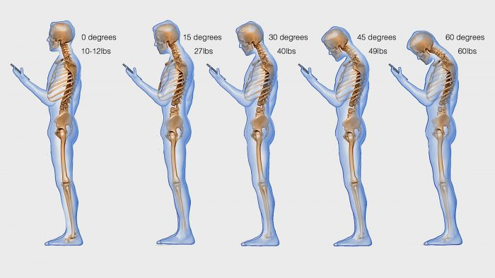 """Text Neck"" is Giving Young People Major Spine Issues"