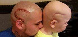 Dad Gets Matching Tattoo of Son's Cancer Scar