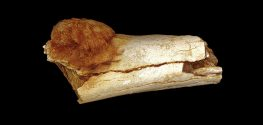 Evidence of Human Cancer 1.7 Million Years Ago Discovered