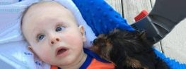 This Baby Born with His Brain Outside His Skull Will Inspire You