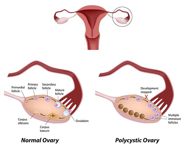 ovarian-polyctstic-650
