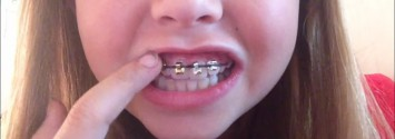Orthodontists Warn Against DIY Braces Fad to Straighten Your own Teeth