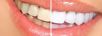 teeth-smile-white-735-350