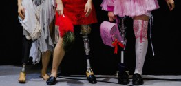 'Transabled': A New Group Emerges That Wants To Be Medically Disabled