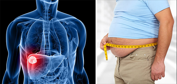obesity and liver cancer