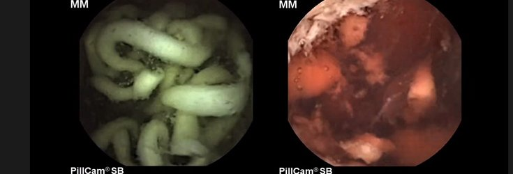 Watch: This Is What Happens Inside Your Body When You Eat Fast Food