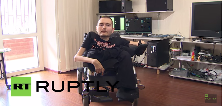 Russian Man with Spinal Cord Disease to Be First Recipient of Human Head Transplant