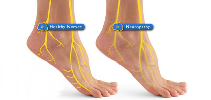 Diabetic Neuropathy CAN Be Treated! 6 Natural Solutions