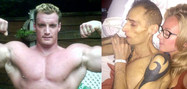 British Bodybuilder Consuming 7-8 Energy Drinks Daily Dies from Liver Cancer