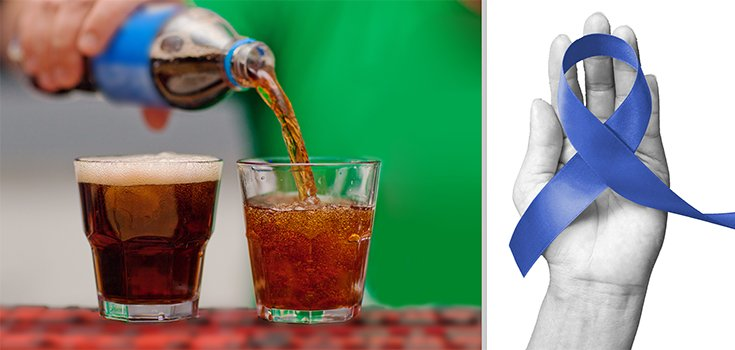 Diet Soda Reduces the Risk for Death and Recurrence of Colon Cancer?