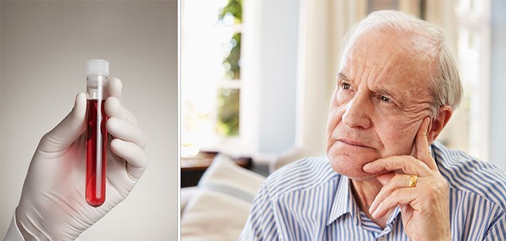 Blood Test Could Predict Alzheimer's More than 16 Years Before Onset