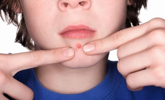 acne pimple