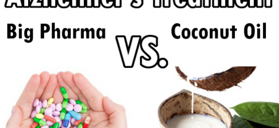 alzheimer's coconut oil