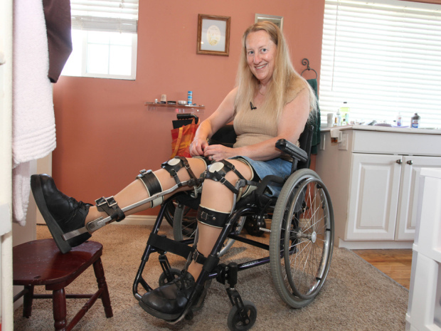 Chloe Jennings-White adjusts leg braces at her home on May 16, 2013, in Salt Lake City, Utah. She wears leg braces even though she does not need them. A disability acquired in recent years has forced her into a wheelchair. Laurentiu Garofeanu/Barcroft Media /Landov ORG