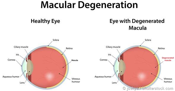 image-macular-degenretaion