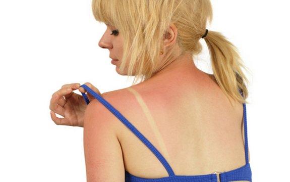 girl sunburn